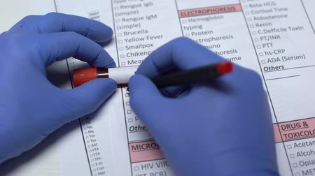 шнур : N meningitidis, doctor checking disease in lab blank, showing blood sample
