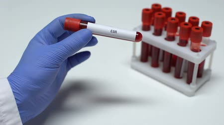inflammation : ESR test, doctor showing blood sample in tube, lab research, health checkup