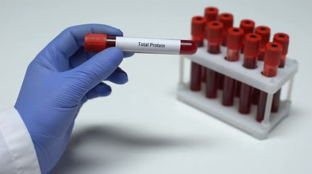 celkový : Total protein, doctor showing blood sample in tube, lab research, health checkup