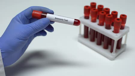 mocz : Ammonia test, doctor showing blood sample in tube, lab research, health checkup