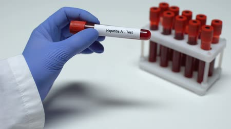 острый : Hepatitis A, doctor showing blood sample in tube, lab research, health checkup Стоковые видеозаписи