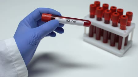 compatibility : HLA test, doctor showing blood sample in tube, lab research, health checkup Stock Footage