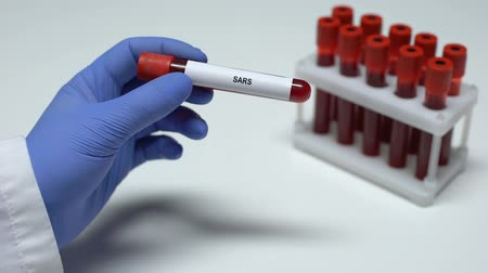 острый : SARS test, doctor showing blood sample in tube, lab research, health checkup