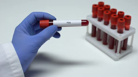 specifiche : PSA test, doctor showing blood sample in tube, lab research, health checkup Filmati Stock