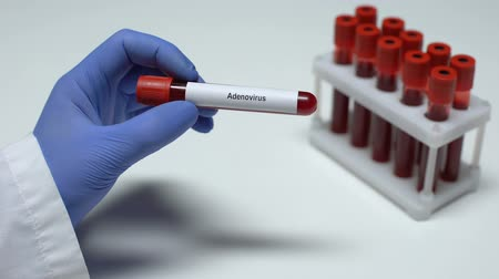 longontsteking : Adenovirus, doctor showing blood sample in tube, lab research, health checkup Stockvideo