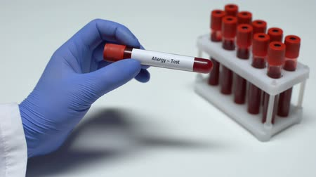 allergen : Allergy test, doctor showing blood sample in tube, lab research, health checkup Stock Footage