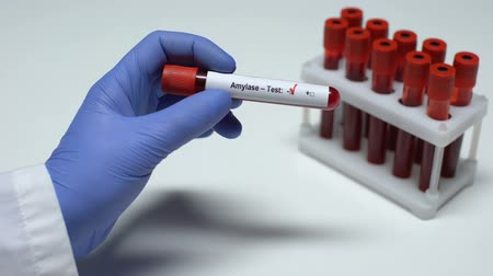 образец : Negative Amylase test, doctor showing blood sample, lab research, health checkup