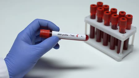 antibody : Negative ANA profile test, doctor showing blood sample in tube, health checkup Stock Footage