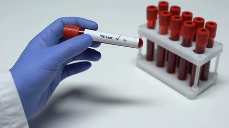 vih : Negative HIV test, doctor showing blood sample, lab research, health checkup