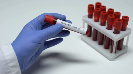 borrões : Negative Western blot test, doctor showing blood sample in tube, health checkup Vídeos