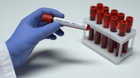 oncologia : Positive Prostate cancer test, doctor showing blood sample in tube, lab research