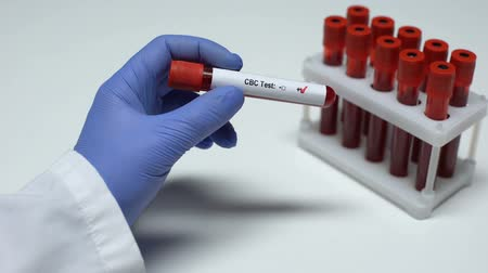 completo : Positive CBC test, doctor showing blood sample, lab research, health checkup Vídeos