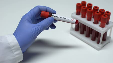 resultado : Positive Liver function test, doctor showing blood sample in tube, lab research