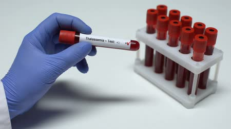 pálido : Positive Thalassemia test, doctor showing blood sample in tube, health checkup Vídeos