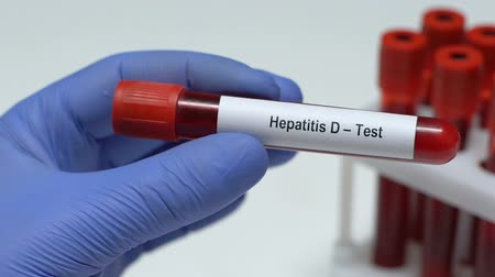 беспорядок : Hepatitis D-Test, doctor holding blood sample in tube close-up, health check-up