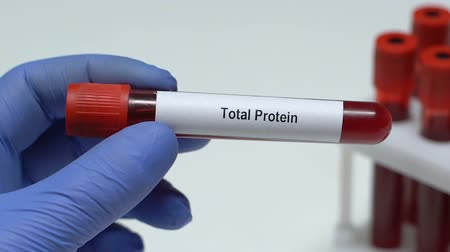 celkový : Total Protein, doctor holding blood sample in tube close-up, health check-up