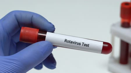 banquinho : Rotavirus Test, doctor holding blood sample in tube close-up, health check-up Vídeos
