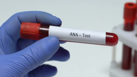 arthritis : ANA-Test, doctor holding blood sample in tube close-up, health examination