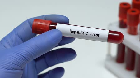 биохимия : Hepatitis C-test, doctor holding blood sample in tube close-up, health check-up