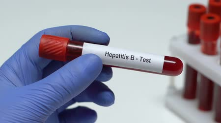 hepatitis b : Hepatitis B-test, doctor holding blood sample in tube close-up, health check-up