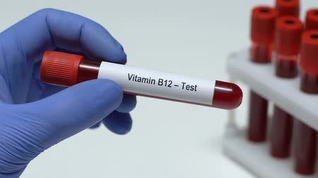 合成 : Vitamin B12-Test, doctor holding blood sample in tube close-up, health check-up