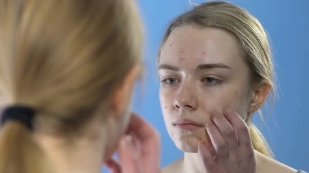 пятна : Teen girl with pimply face looking in mirror, dermatology problems in young age