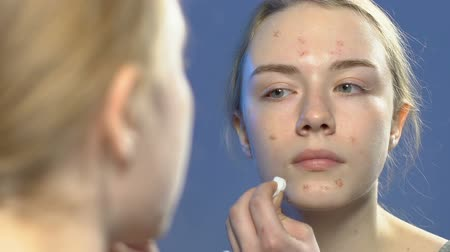 пятна : Female teenager applying cosmetic treatment on face pimples, anti-acne skin care Стоковые видеозаписи