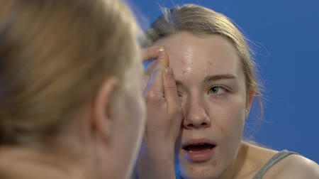 teen age : Teen girl squeezing face acne, skin problems in young age, hormone imbalance