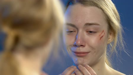 batido : Teen girl with wounded face looking at mirror reflection and deeply crying