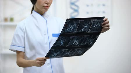 verificar : Attentive female neurosurgeon looking at brain vessels x-ray, analyzing results