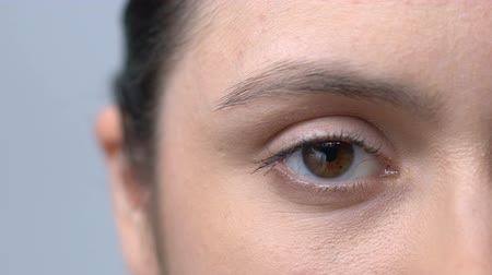 aparat : Tired woman with red blood vessels in eyes slowly blinking looking into camera