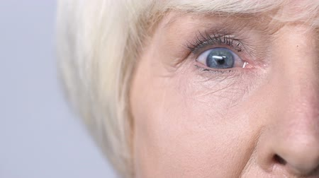 crows feet : Senior woman widely opening her red sore eyes, problems with health, diagnosis