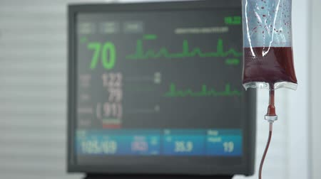 reanimation : Stabilized heart rate on ecg monitor in reanimation room, blood transfusion