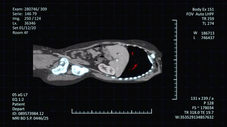 pokrok : High-tech radiology examinations images of human body on medical screen with additional medical data