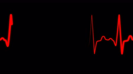 ekg : Heartbeat flatline electrocardiogram medical sceen, loop seamlessly heartbeat in a stressful situation, heart rate in quiescent state. Red heartbeat line on black background