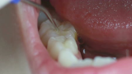 zubní : HD Footage close up of Dentist cleaning teeth and checking with plaque remover tool Dostupné videozáznamy
