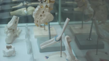 scoliosis : Example of human spine prosthetics with metal prostheses standing in a glass box