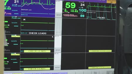 vital signs : Monitor showing charts with patient s vital indicators and heart rate Stock Footage