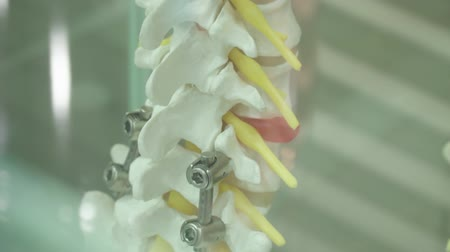 curvature : Example of human spine prosthetics with metal prostheses standing in a glass box