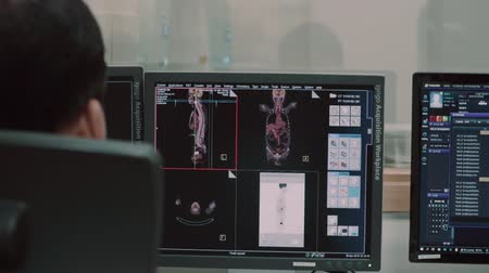 computed : The doctor watches the results of MRI examinations of the patient on the monitor of the computer, on which the internal organs of the person are shown