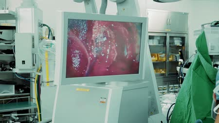 neuro : Surgeon performs surgery on human skull via electronic microscope in operating room with image on monitor