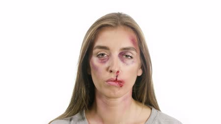 rastr : portrait of a woman on a white background, with traces of domestic violence, bruises of a sadina, blood from the nose on her lips, the girl looks at the camera raster and then smiles