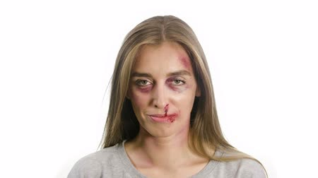 portrait of a woman on a white background, with traces of domestic violence, bruises of a sadina, nosebleed lips, a girl opens her eyes and lowers her head and looks intently at the camera Filmati Stock