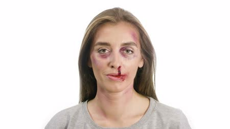 close up : portrait of a woman on a white background, with traces of domestic violence, bruises of a sadina, nosebleeds on the lips, the girl smiles and braces on the teeth