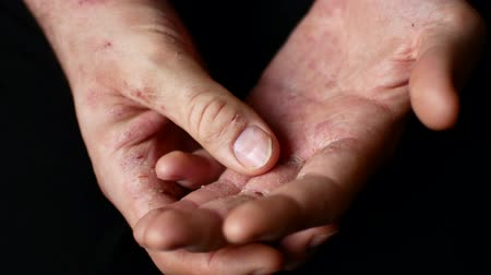 рука : The man scratches his hands. Very itchy fingers, psoriasis. Disease of the skin on the body.
