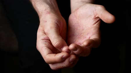 peça : Sick mens hands ask for charity. Hands of a man with psoriasis