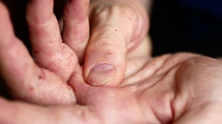 шелуха : Sick mens hands ask for charity. Hands of a man with psoriasis