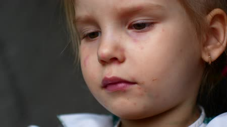 chickenpox : little girl chicken pox watching cartoons. Stock Footage