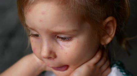 blemished : little girl chicken pox watching cartoons. Stock Footage