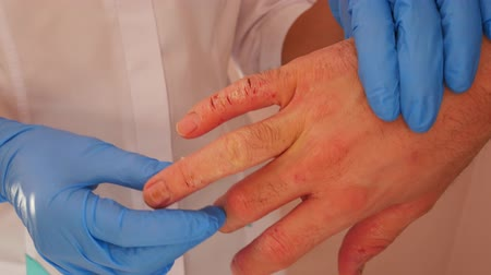 psoriasis : Doctor examining patient with dermatitis on hands, closeup